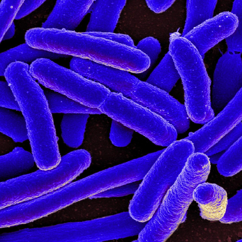 E._coli_Bacteria_(16578744517)-min.jpg